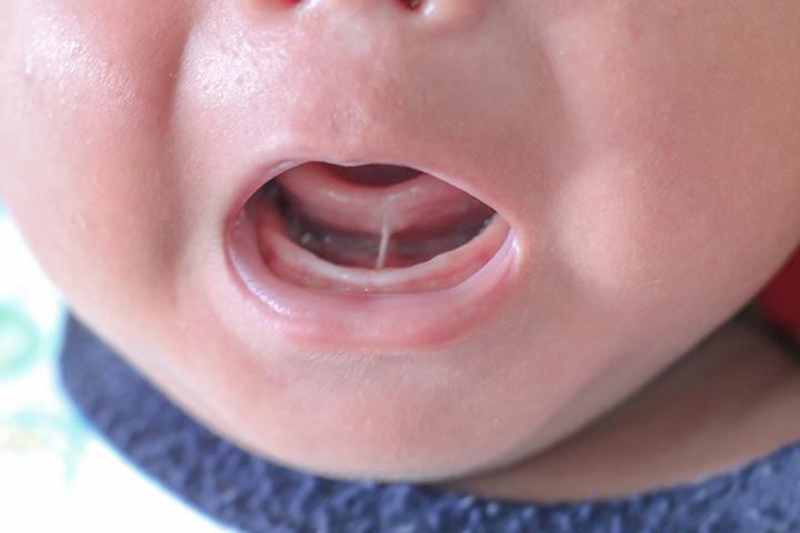 Tongue Tie Treatment Perth